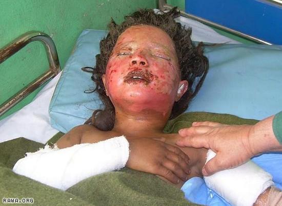 19bala_baluk_wounded.jpg